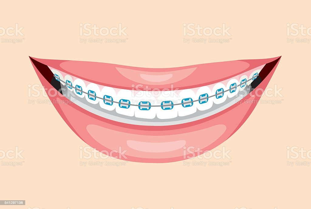 Beautiful Smile With Teeth Braces vector art illustration