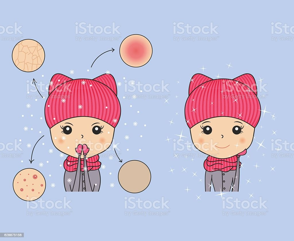 Beautiful woman in cozy hat showing winter skin problems. Needs vector art illustration