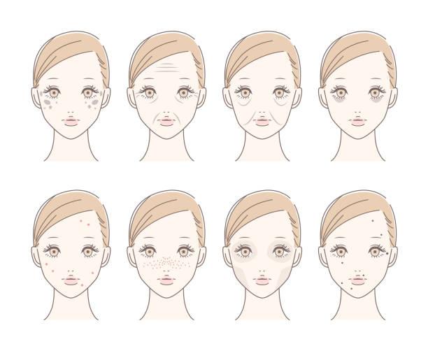 illustrations, cliparts, dessins animés et icônes de belle femme avec des taches, des rides, saggy, cernes, bouton, taches de rousseur, terne, taupes. isolé sur blanc. - femme tache de rousseur