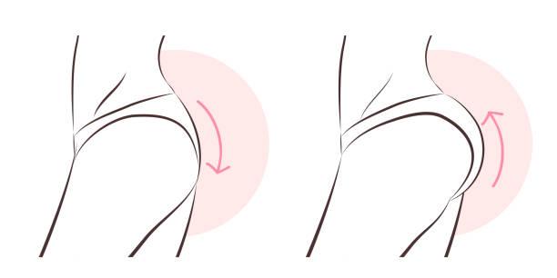 bildbanksillustrationer, clip art samt tecknat material och ikoner med skönhet kvinna med butt implant - bum