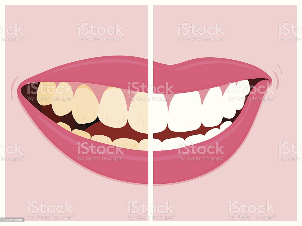 Before and after images of teeth whitening vector art illustration