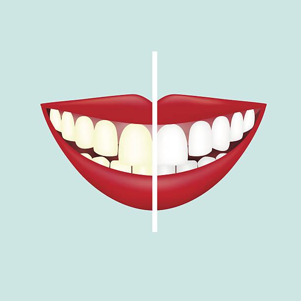 bildbanksillustrationer, clip art samt tecknat material och ikoner med before and after view of teeth whitening - tandblekning