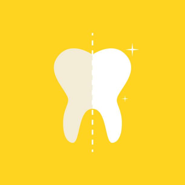 bildbanksillustrationer, clip art samt tecknat material och ikoner med före och efter, whitening munvård koncept. djuprengöring, clearing tand process. vektor illustration. - tandblekning