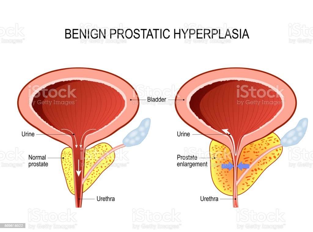 Benign prostatic hyperplasia. prostate enlargement. vector art illustration