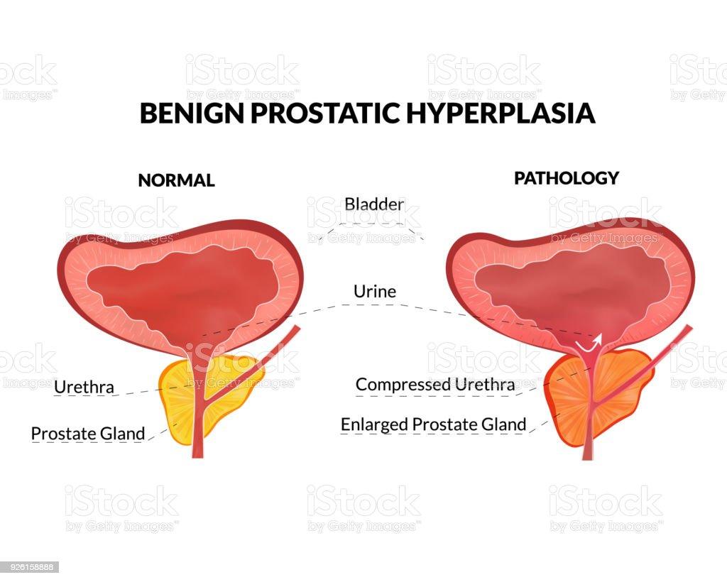 Benigne Prostatahyperplasie Stock Vektor Art und mehr Bilder von ...