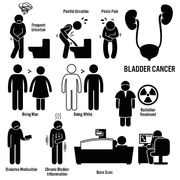 Bladder Cancer Illustrations Set of illustrations for bladder cancer disease which include the symptoms, causes, risk factors, and the diagnosis for the illness. cancer illness stock illustrations