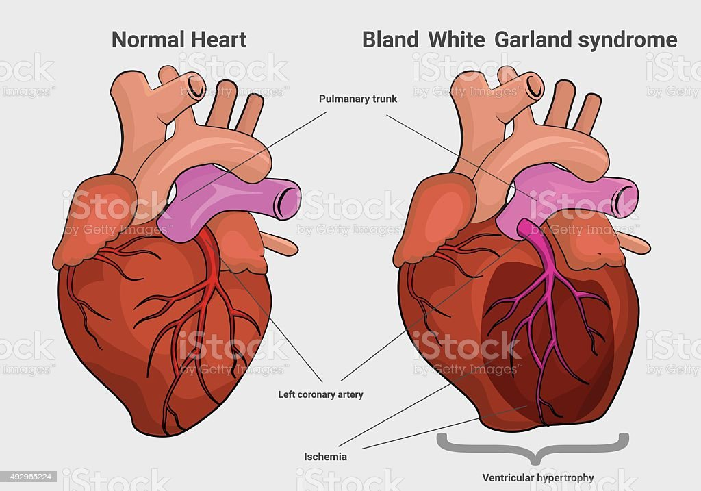 Bland White Garland Syndrome Versus Normal Heart Anatomy Stock ...