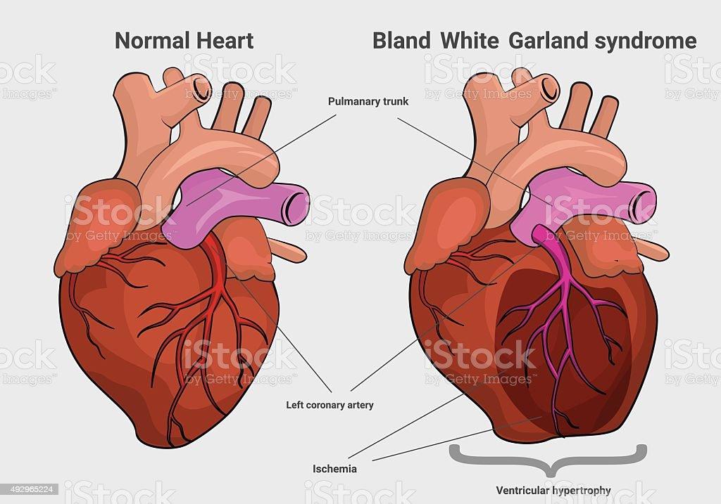 Bland White Garland syndrome versus normal heart anatomy vector art illustration