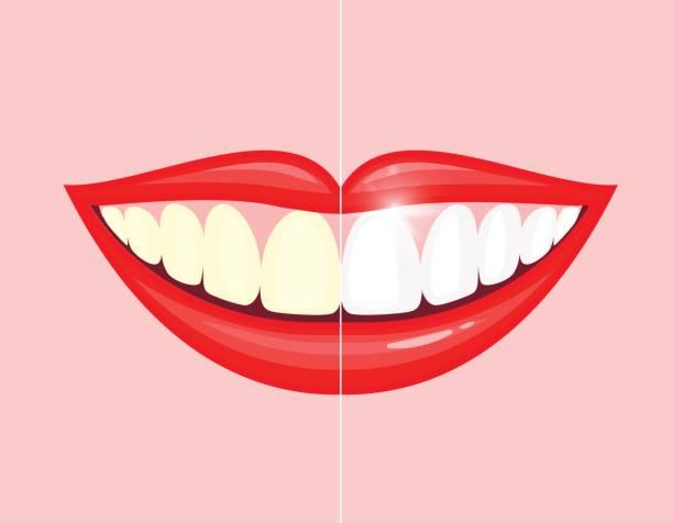 bildbanksillustrationer, clip art samt tecknat material och ikoner med blekning tänder behandling. bleka tänder före och efter. - tandblekning
