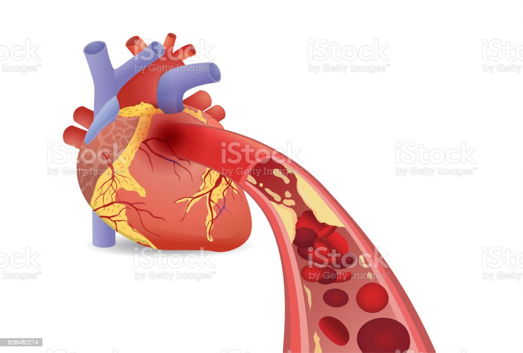 Blood cell can't flow into human heart because clogged arteries by fatty. vector art illustration