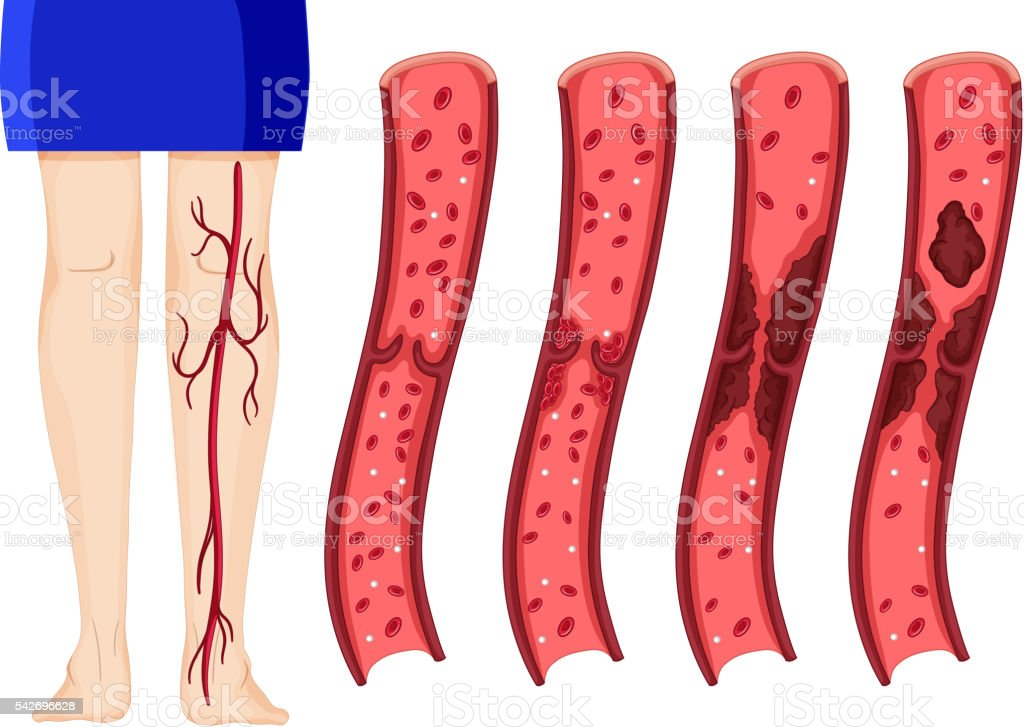 Blood clot in human legs vector art illustration