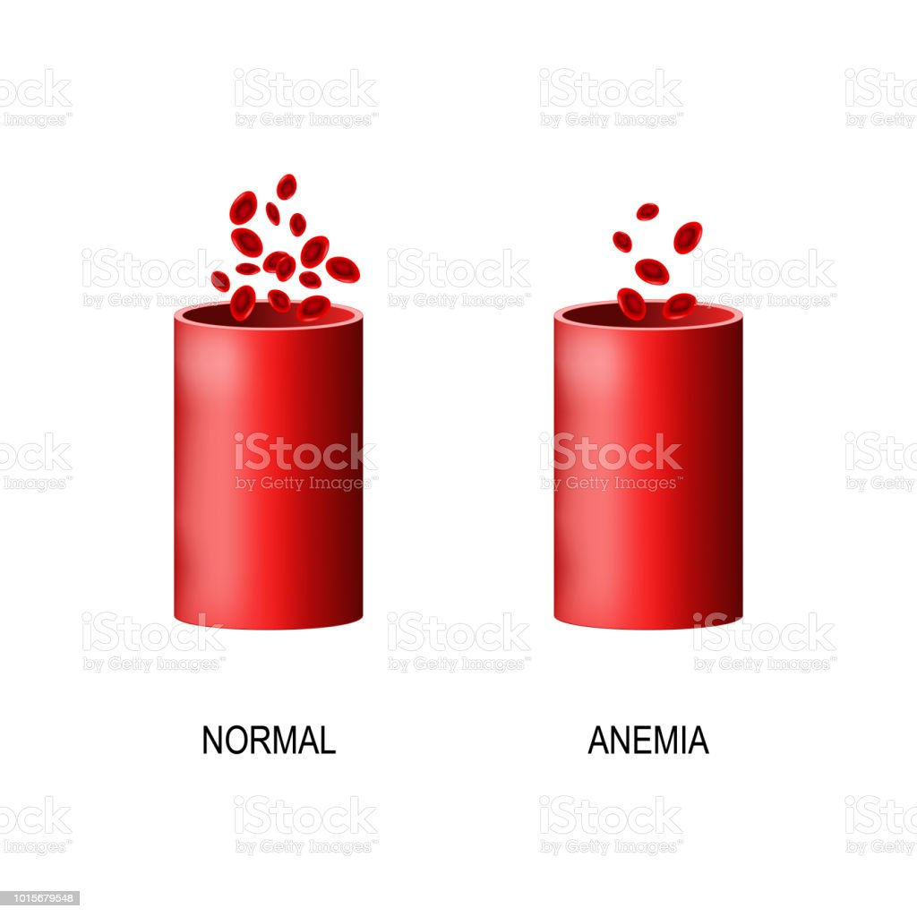 Blood Of Healthy Human And Blood Vessel With Anemia Stock Vector Art ...