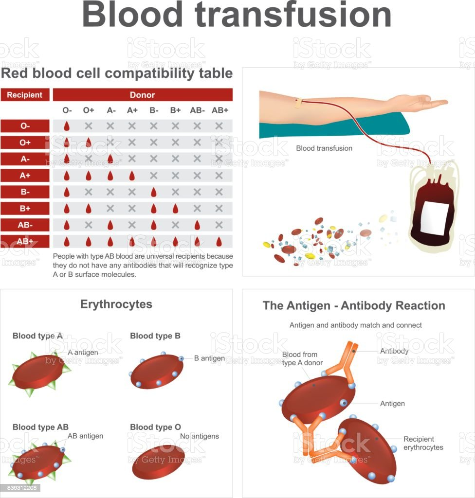 Blood transfusion. vector art illustration