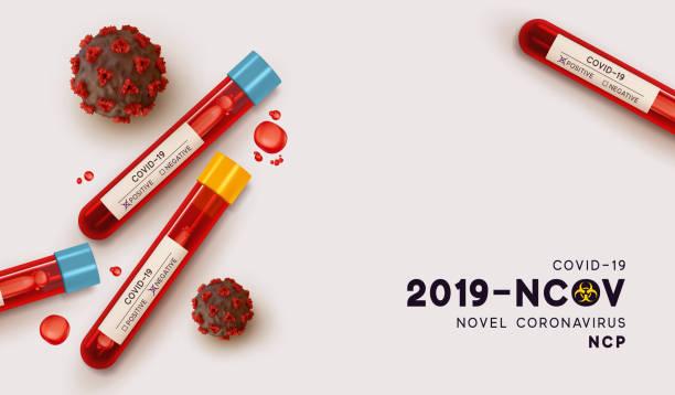 bildbanksillustrationer, clip art samt tecknat material och ikoner med blodrör för testning i laboratorium på coronavirus sars cov-2. blodprov för virussjukdom covid-19 ncp. realistiska 3d provrör, resultat prov för virus positiva-negativa. vektorillustration - test tube