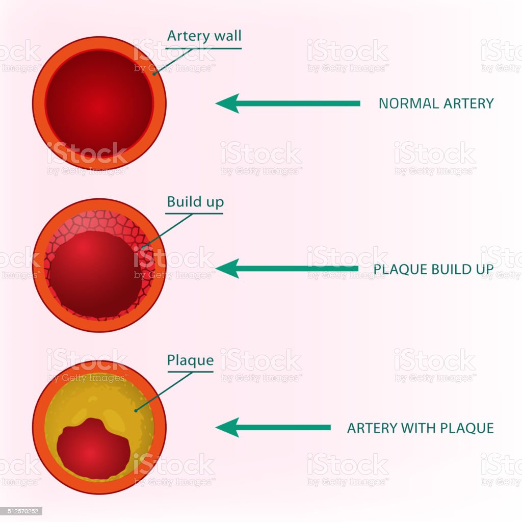 Blood Vector Image vector art illustration