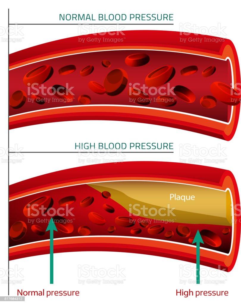 Blut Vektorbild Stock Vektor Art und mehr Bilder von Anatomie ...