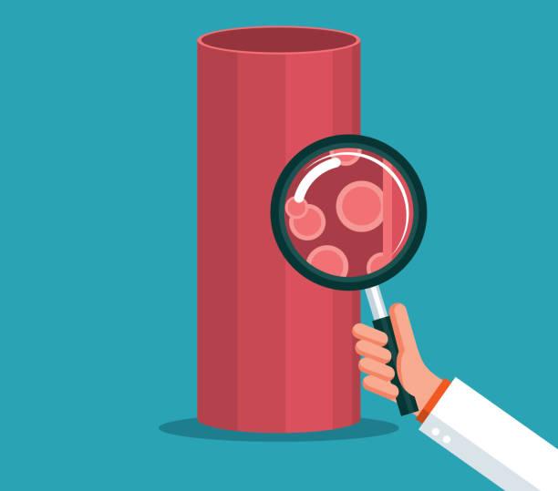 ilustrações, clipart, desenhos animados e ícones de vaso sanguíneo - lupa - colesterol