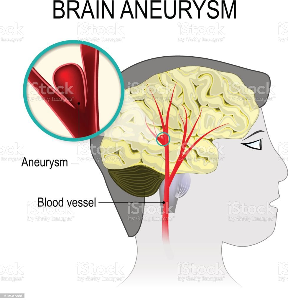 Blood vessels in the brain with aneurysm vector art illustration