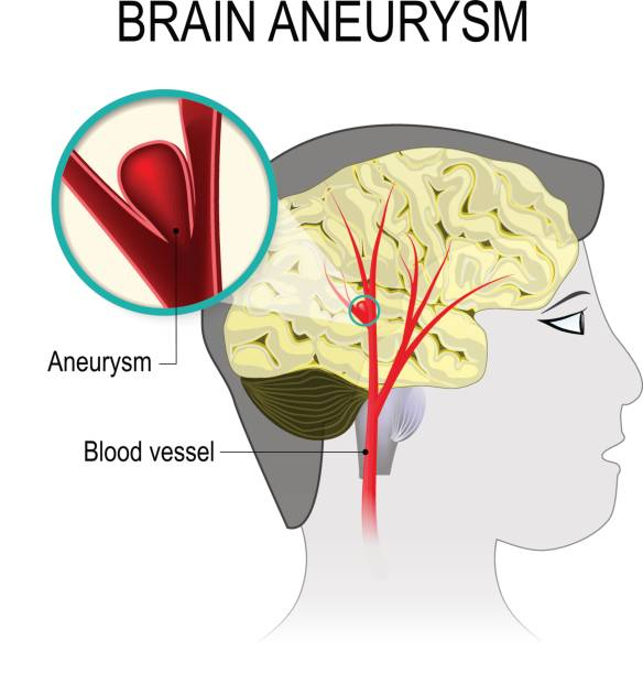 Blood vessels in the brain with aneurysm Blood vessels in the brain with aneurysm on the background of the silhouette head man. rupture blood vessel into the cerebral hemisphere causing a stroke. Human anatomy. Medical illustration brain stem stock illustrations