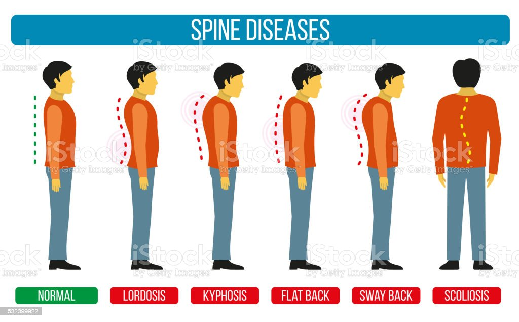 Body posture defect. Vector infographics of spine diseases vector art illustration
