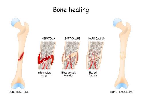 Bone healing Process after a bone fracture