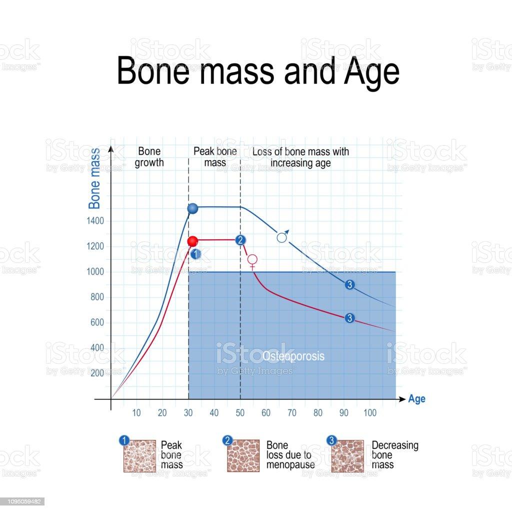 masse osseuse femme