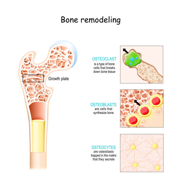 bone remodeling process (resorption, reversal, formation, and mineralization). Osteoblast, osteoclast, and osteocyte. bone remodeling process (resorption, reversal, formation, and mineralization). Osteoblast, osteoclast, and osteocyte. Vector illustration of human bone cell types. Medical diagram. bone marrow tissue stock illustrations