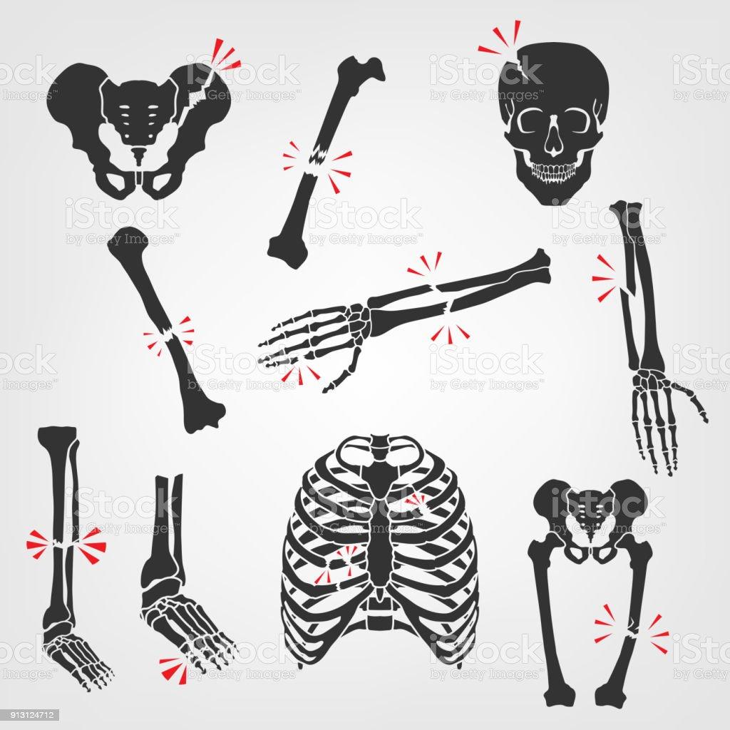 Fracturas de los huesos los iconos - ilustración de arte vectorial