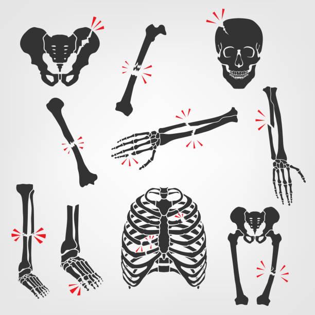 骨骨折のアイコン - 骨点のイラスト素材/クリップアート素材/マンガ素材/アイコン素材