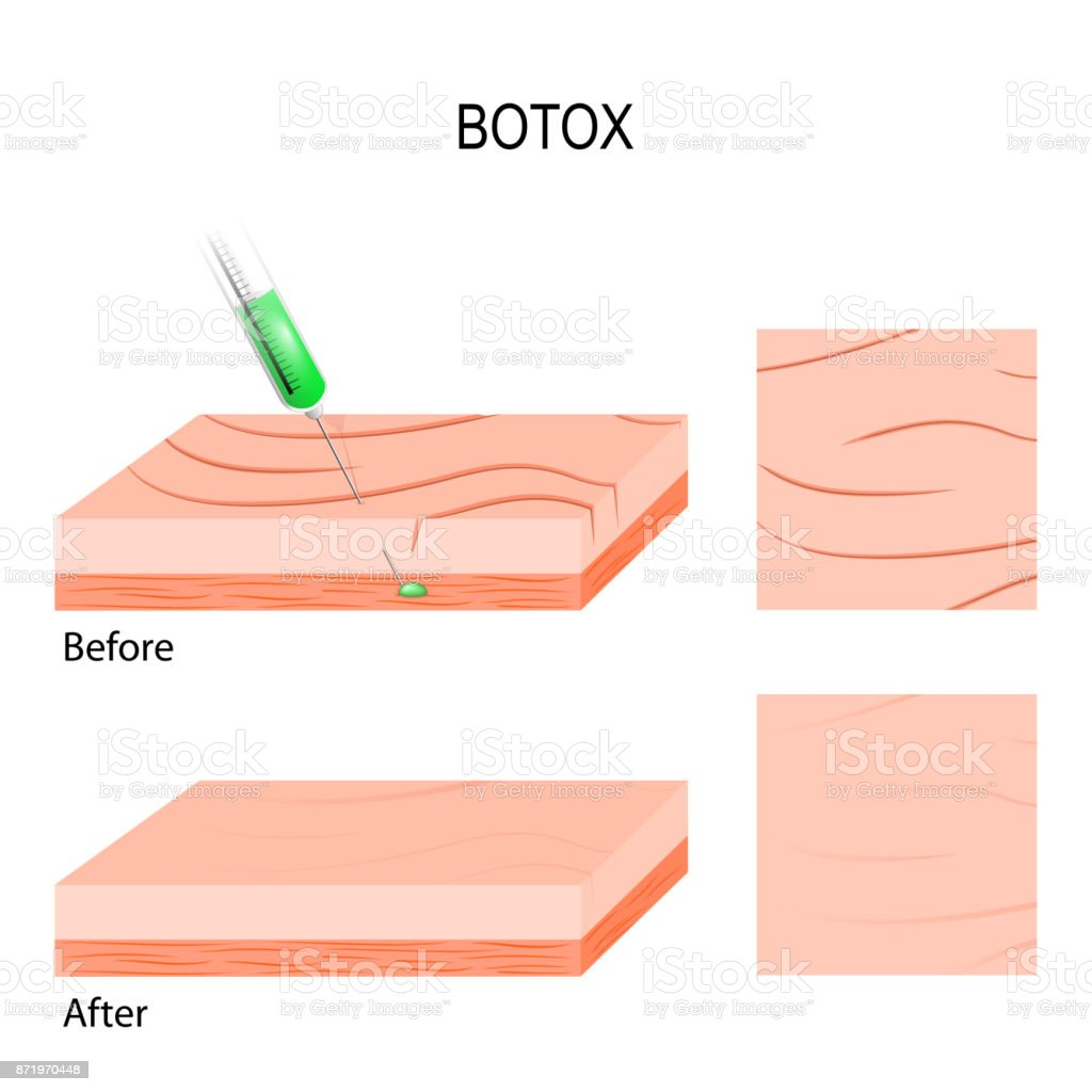 Botox. cosmetic filler vector art illustration