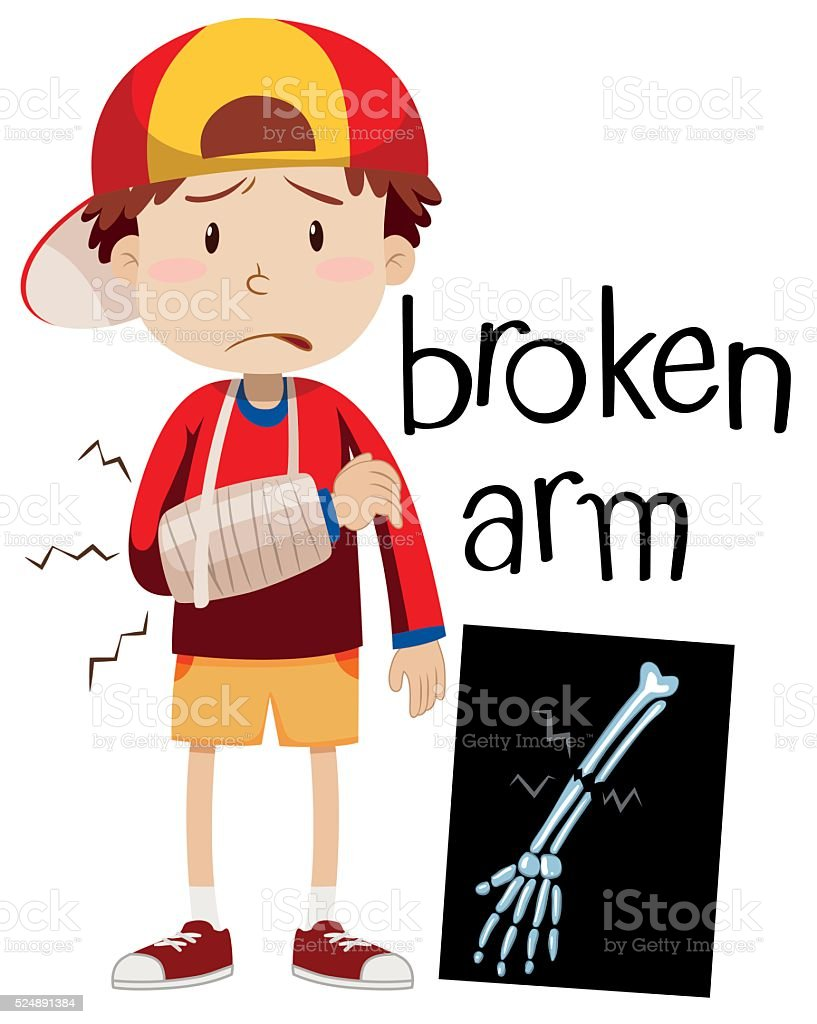 Boy with broken bone and x-ray vector art illustration