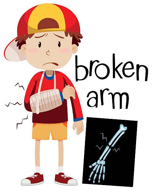 Boy with broken bone and x-ray vector art illustration