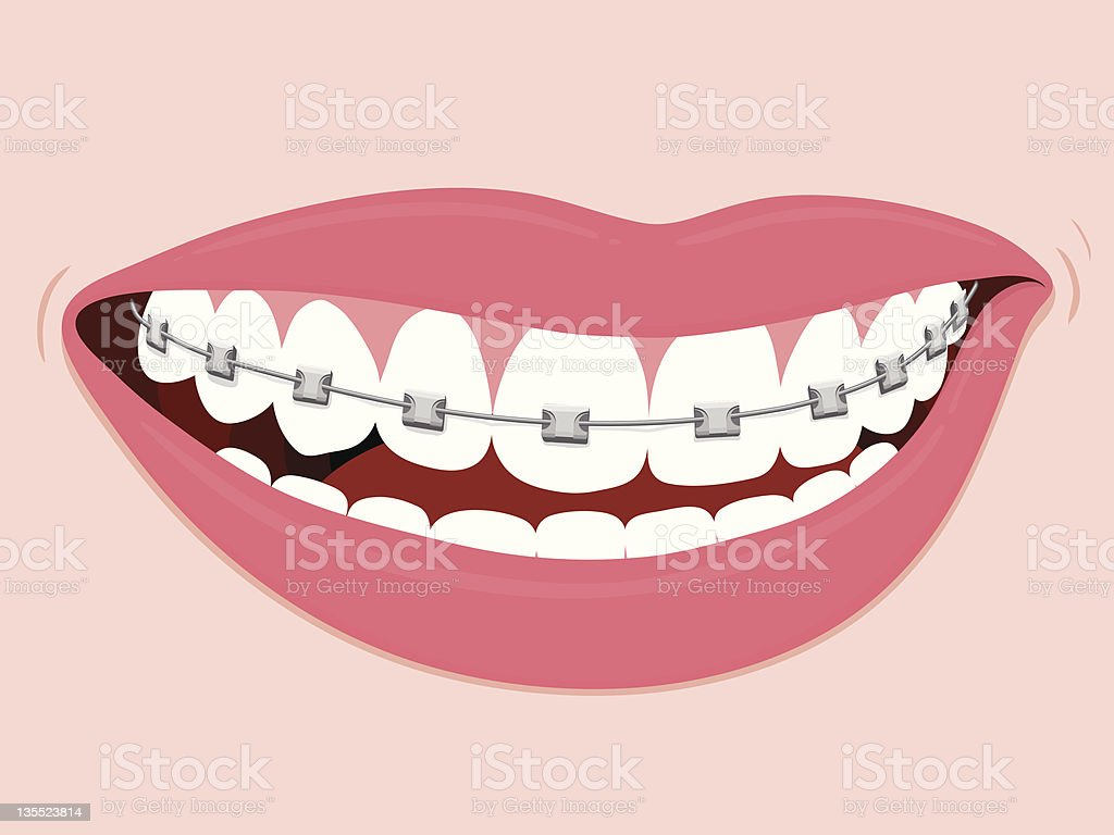 Braces Corrective Orthodontics vector art illustration