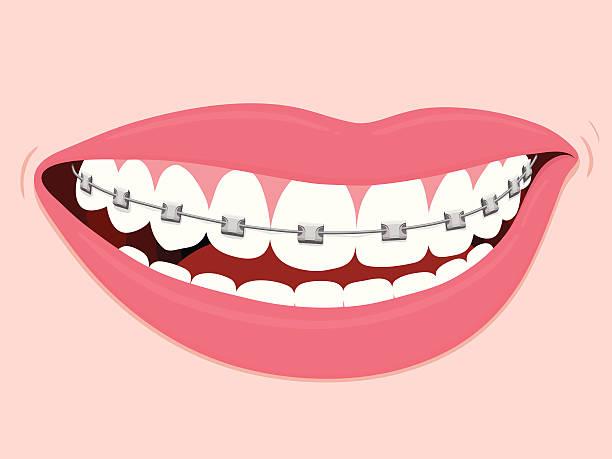 ilustraciones, imágenes clip art, dibujos animados e iconos de stock de frenillos orthodontics correctivas - ortodoncista