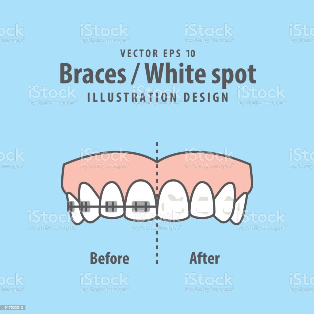 Braces-White spot illustration vector on blue background. Dental concept. vector art illustration