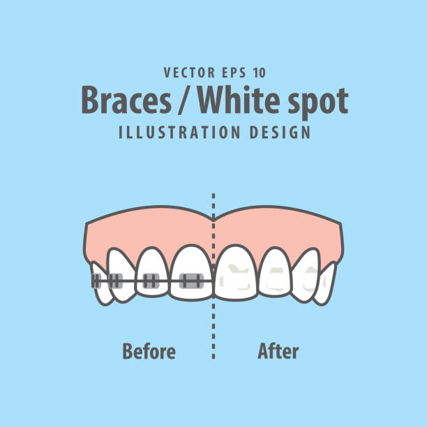 illustrations, cliparts, dessins animés et icônes de accolades-white spot illustration vecteur sur fond bleu. concept dentaire. - orthodontiste