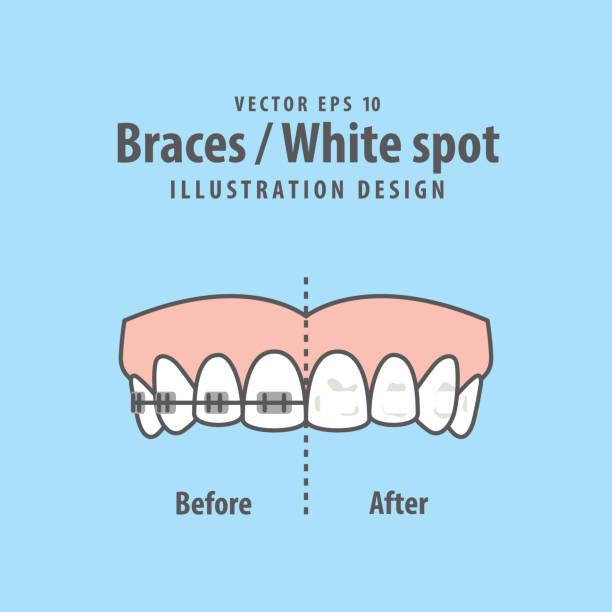 ilustraciones, imágenes clip art, dibujos animados e iconos de stock de vector ilustración punto tirantes blanco sobre fondo azul. concepto dental. - ortodoncista