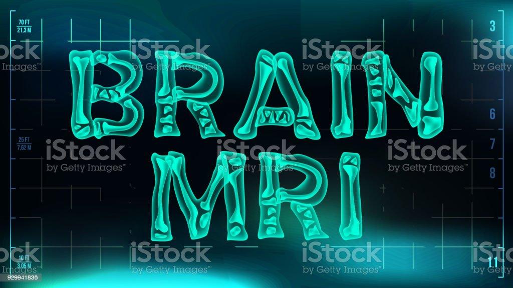 Gehirnmrtbannervektor Medizinischer Hintergrund Transparente ...