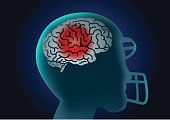 Brain of American football player have a red signal.