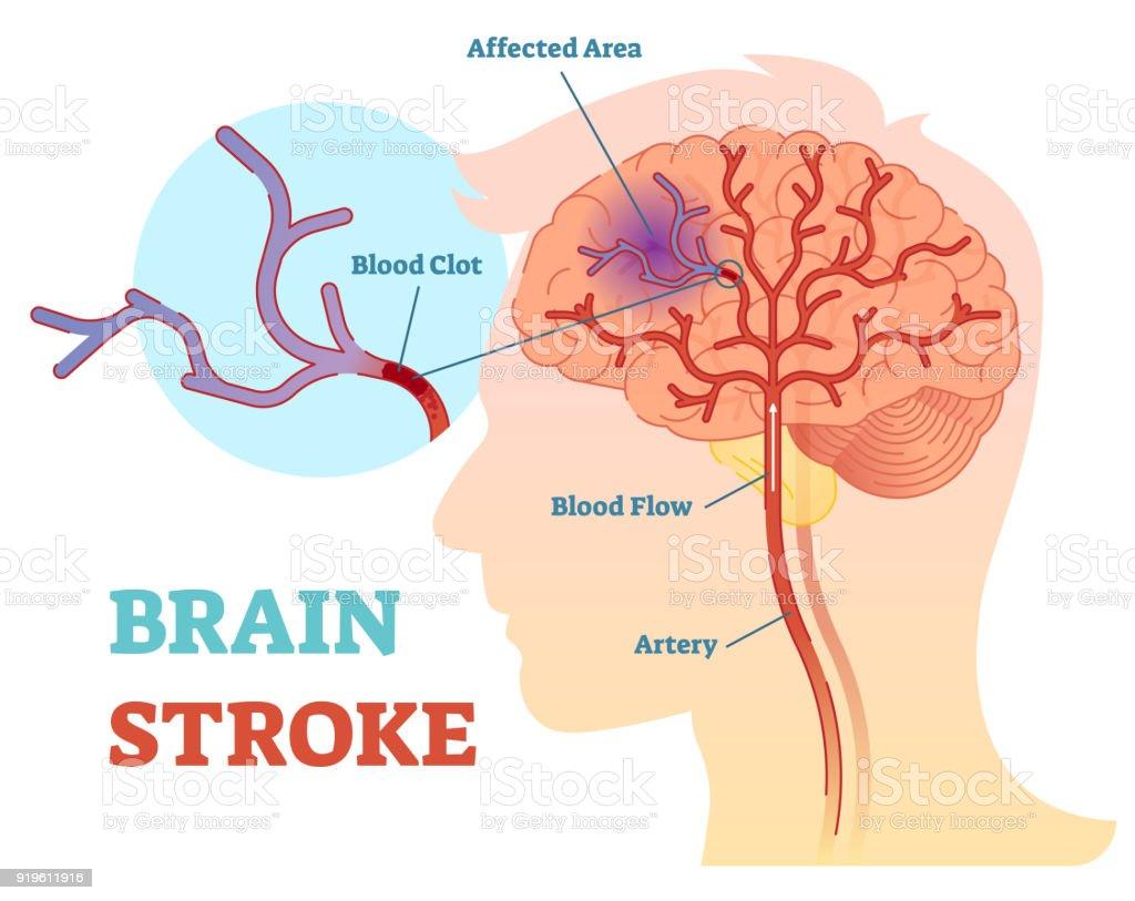 Gehirn Schlaganfall Anatomische Abbildung Vektordiagramm Schema ...