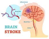 Brain Stroke anatomical vector illustration diagram, scheme