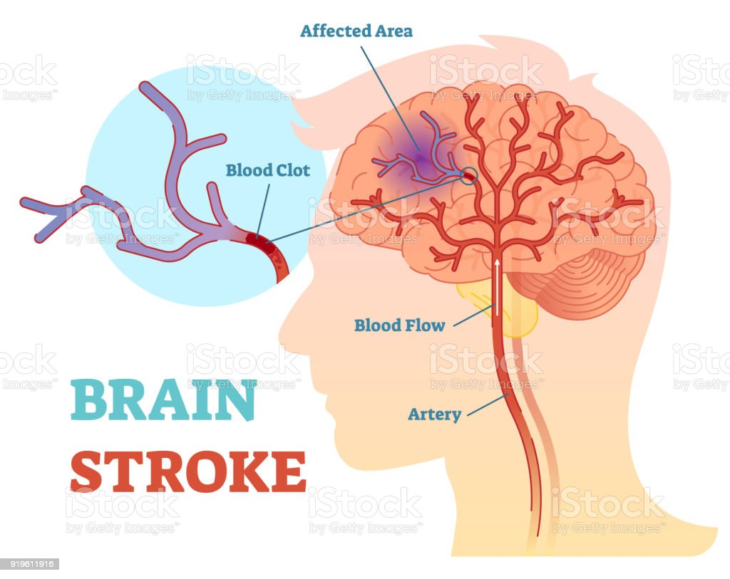 Brain Stroke anatomical vector illustration diagram, scheme vector art illustration
