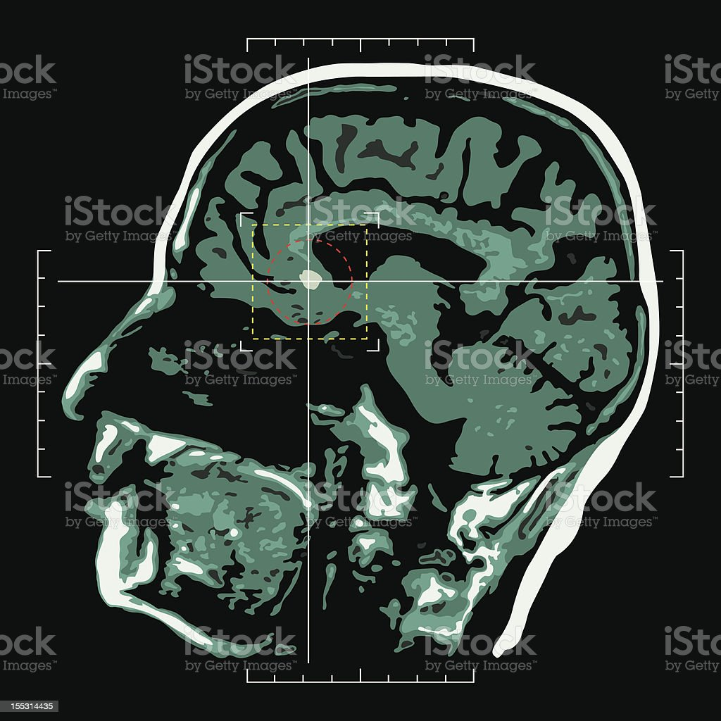 Brain - target vector art illustration