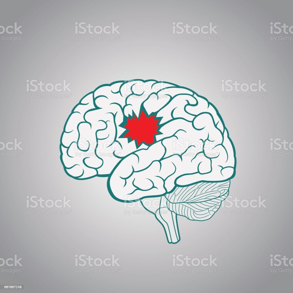 Ein Gehirn Mit Einem Loch Das Konzept Der Zerstörung Des Gehirns ...