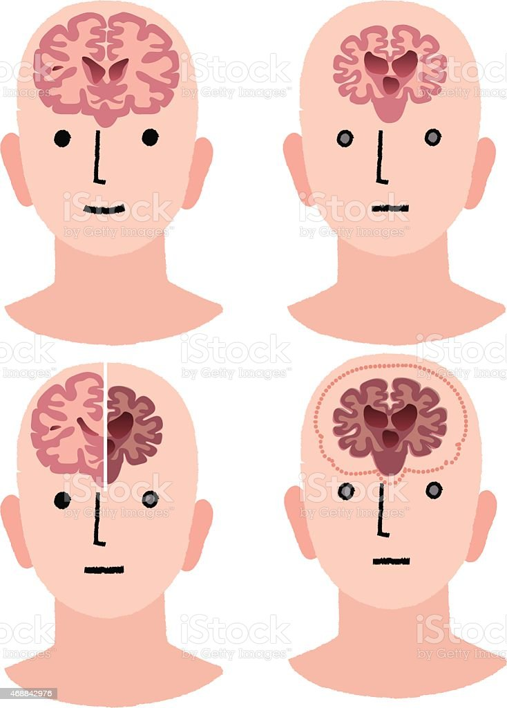 Brains of Dementia and Healthy man vector art illustration