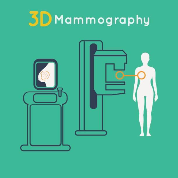 Breast cancer, 3D Mammography vector illustration vector art illustration