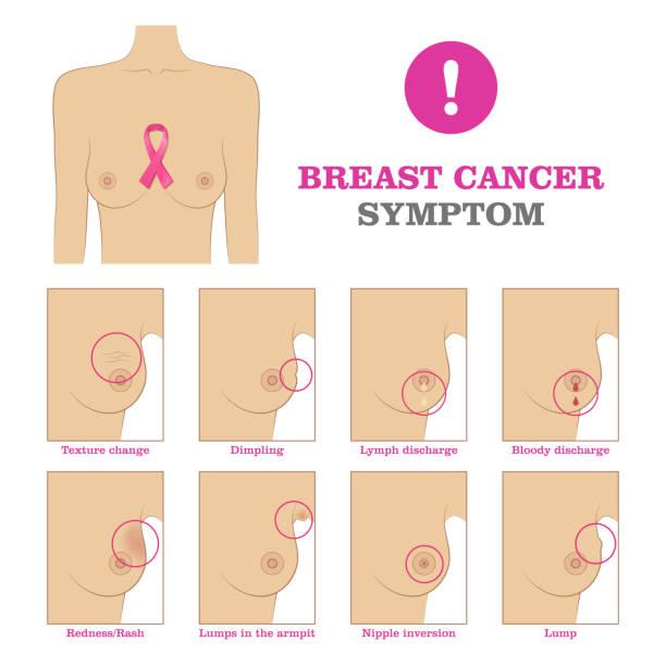 Breast cancer symptom Breast cancer symptom. Warning signs and danger, unusual changes and pain. Information poster. Female healthcare concept. White background vector illustration breast stock illustrations