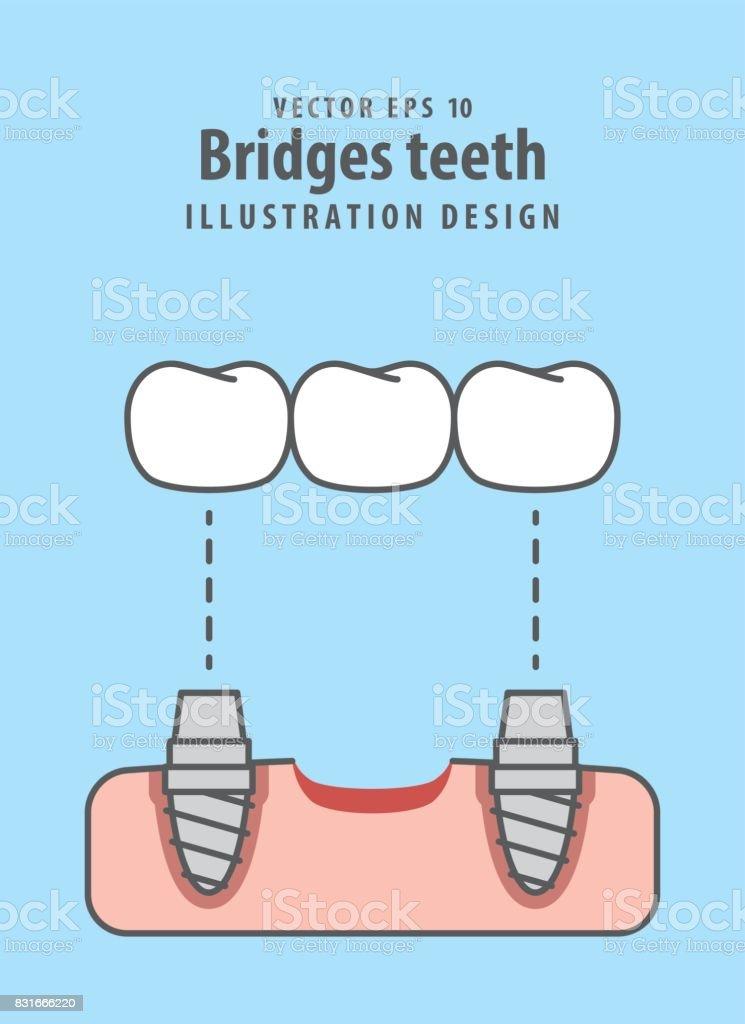 橋歯イラスト ベクトル青の背景に歯科のコンセプトです ねじのベクター
