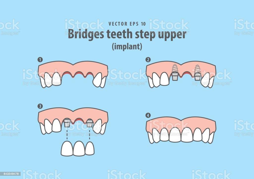 Bridges teeth step upper (implant) illustration vector on blue background. Dental concept. vector art illustration