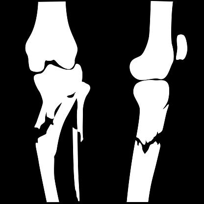 Broken Knee Fractured
